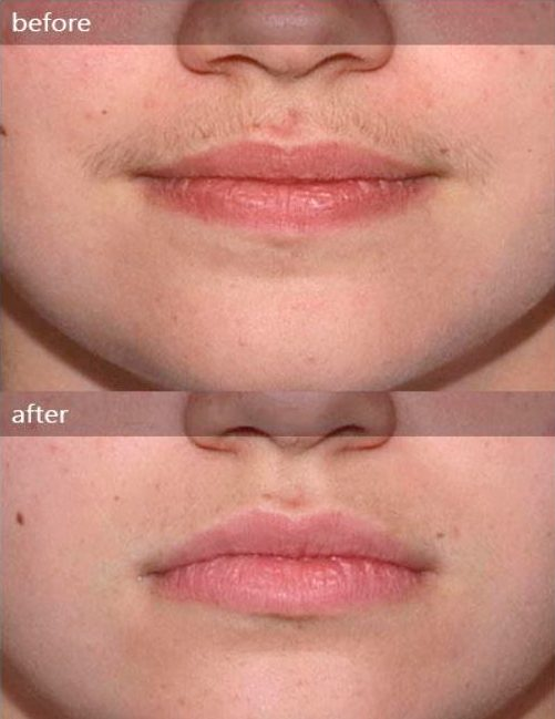 treatment facial hair laser
