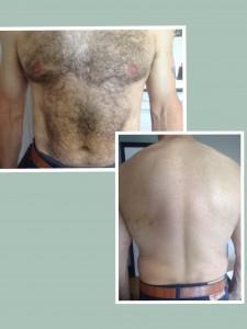 Effective IPL Laser hair removal for men